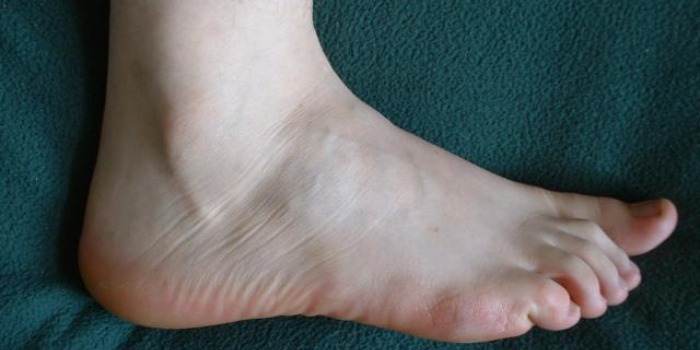 Foot fungal infection